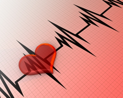 Atrial Fibrillation – Why is it Rising?